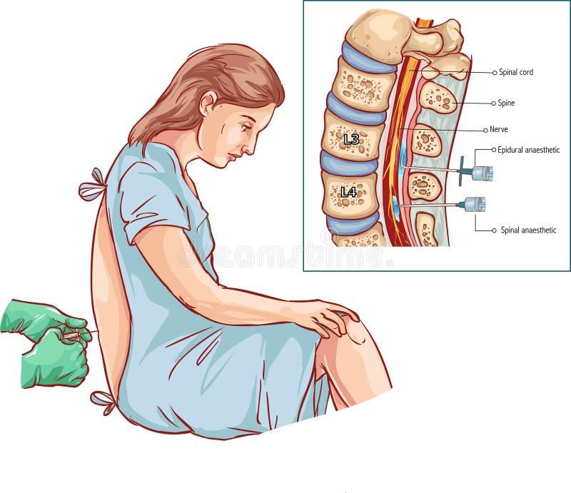 Ejemplo epidural de la inyección de bloque de nervio stock de ilustración