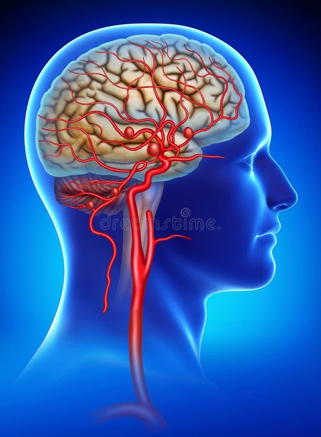 Ejemplo esquemático y descriptivo del aneurysm en el cerebro humano stock de ilustración