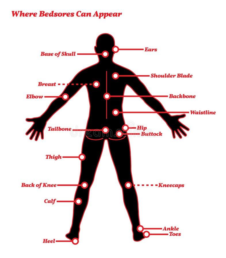 Ejemplo humano de la anatomía de las úlceras de las encentaduras de los dolores de la presión libre illustration
