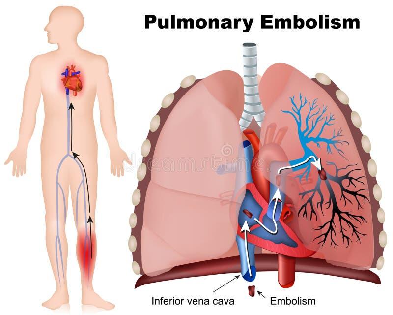 Ejemplo médico de la embolia pulmonar con la descripción en el fondo blanco stock de ilustración