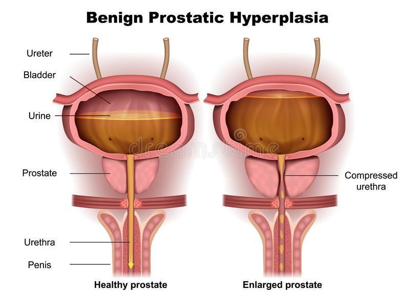 Ejemplo médico prostático benigno de la hiperplasia 3d libre illustration