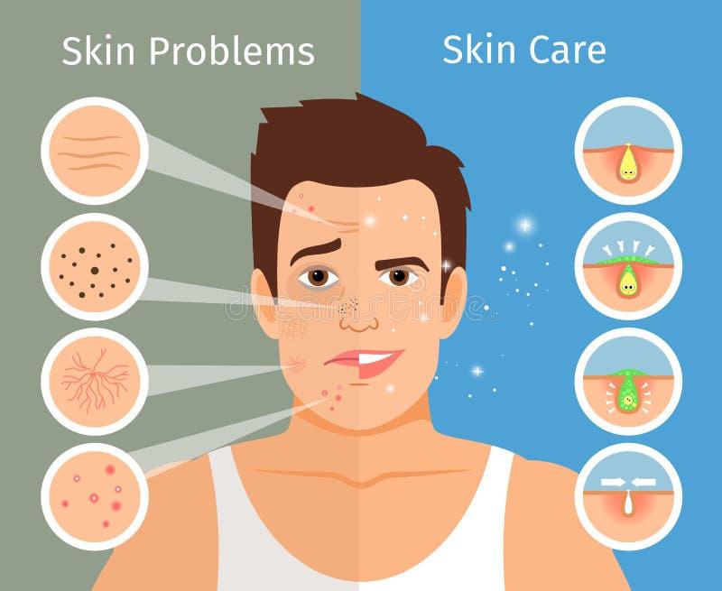 Ejemplo masculino del tratamiento de la piel de la cara stock de ilustración