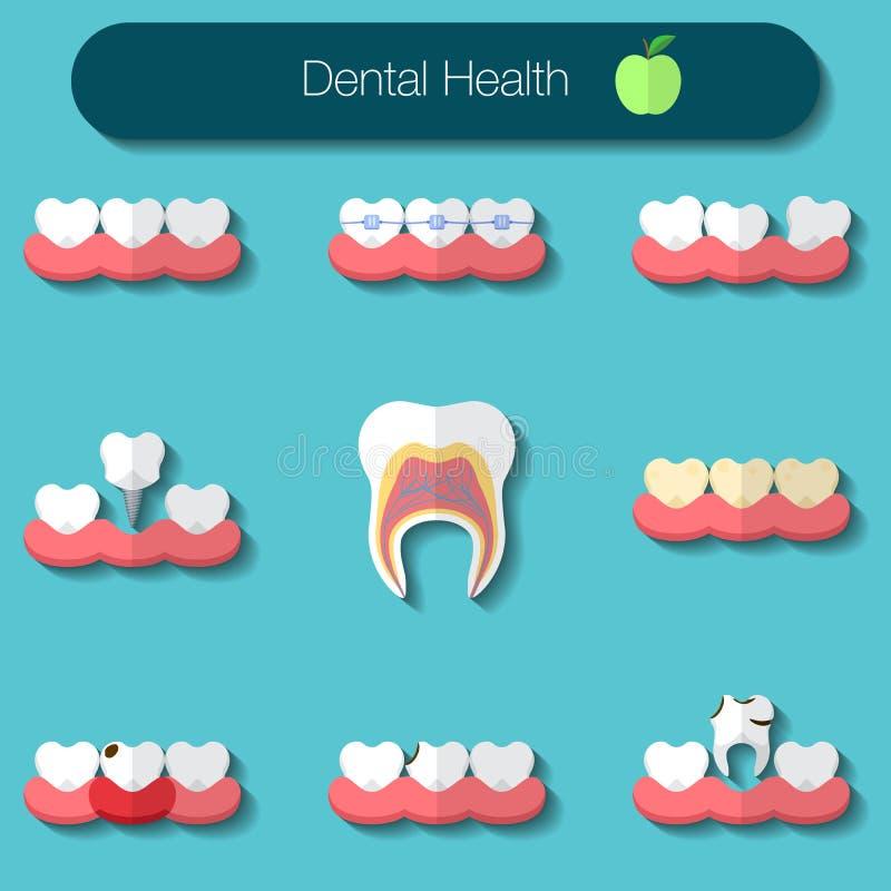 Ejemplo plano del vector del diseño del cuidado dental del theeth heathy, de la carie, de los apoyos sistema, de la implantación, stock de ilustración