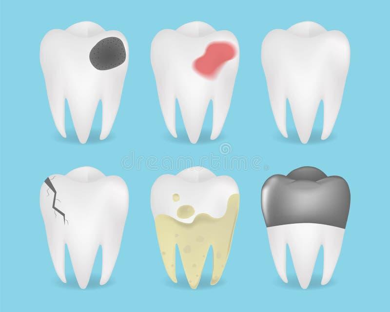 Ejemplo quebrado blanco y de la carie realista de los dientes del sistema ilustración del vector