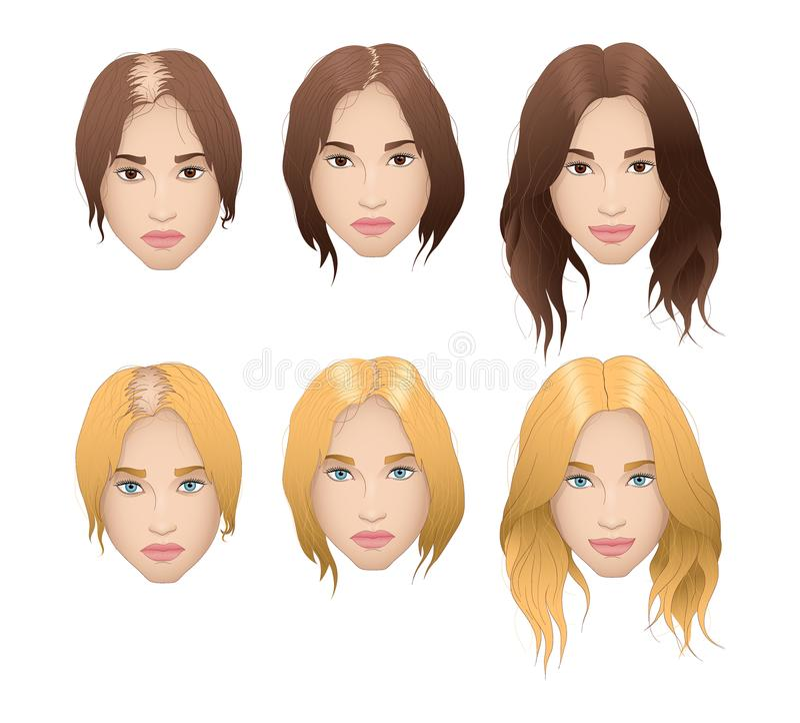 Ejemplo realista de la pérdida de pelo de la mujer libre illustration