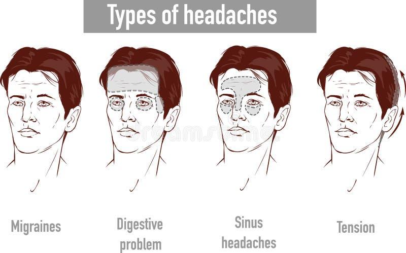 Ejemplo sobre tipo de los dolores de cabeza 4 en diversa área del paciente ilustración del vector