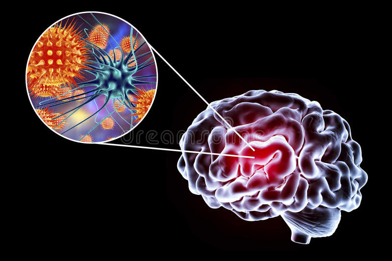 Ejemplo viral de la encefalitis stock de ilustración