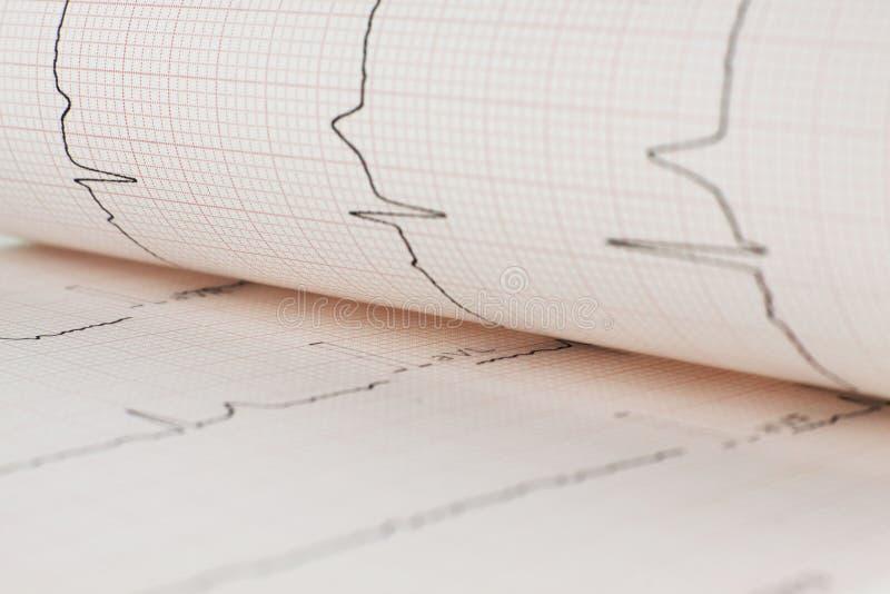 EKG心脏板料 库存图片
