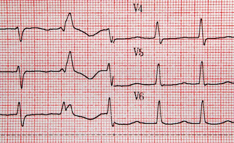 EKG fotos de archivo libres de regalías