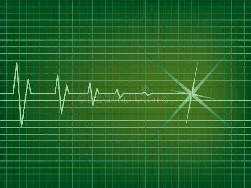 EKG Stock Photos