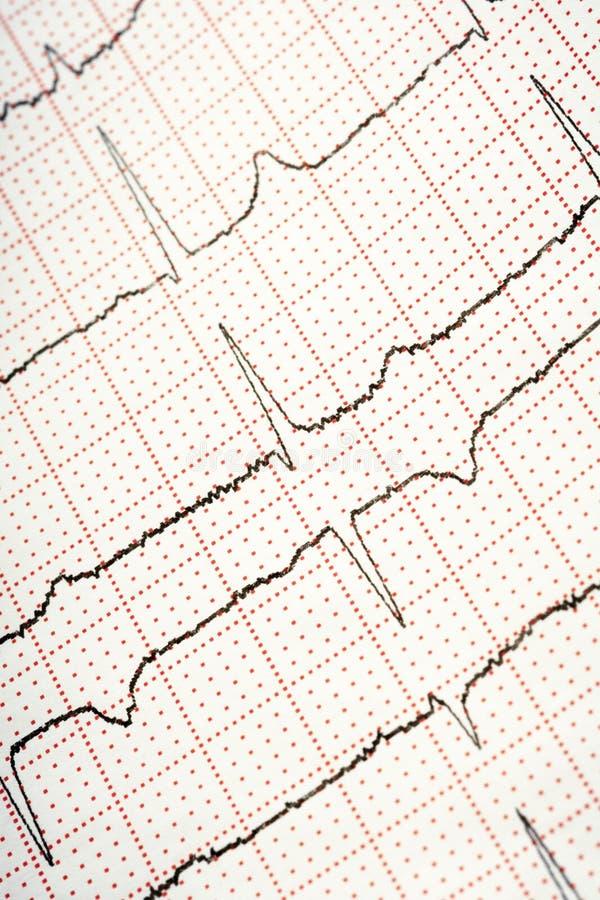 EKG fotografia stock libera da diritti