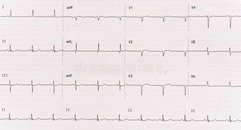 Download EKG stock photo. Image of waveform, rate, technology, attack - 4453524