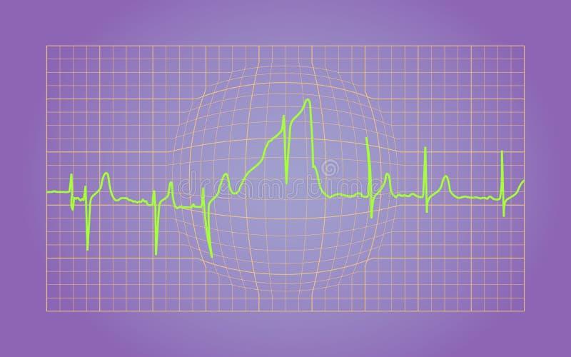 EKG ilustração stock