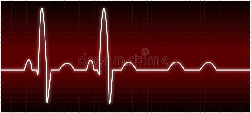 EKG anormal (bloque del sistema de pesos americano) ilustración del vector