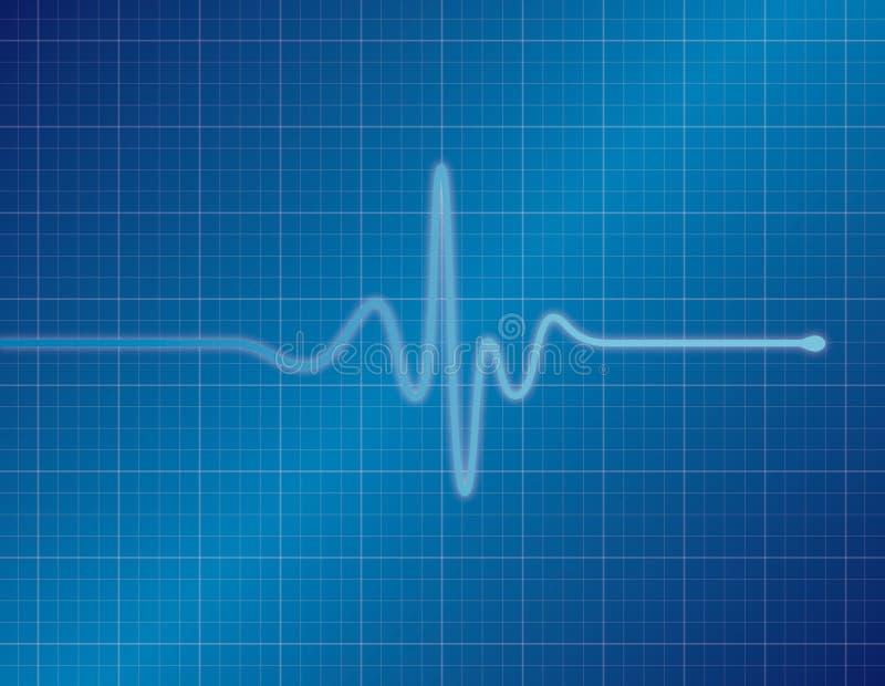 EKG - Blu illustrazione di stock