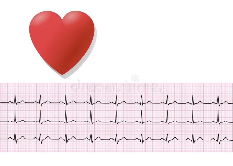 EKG/ ECG 3 vector illustration