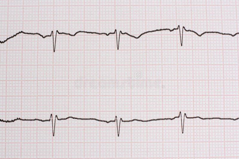 Download Ekg/ Ecg - Medical Background Stock Image - Image: 12653575