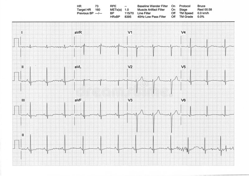EKG or ECG result from a Treadmill Stress Test. Regular low heartbeat (73bpm) on rest phase (male, 34y stock photography