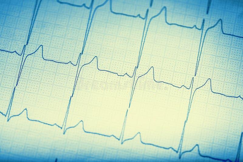 Ekg graf Elektrokardiogramekgecg royaltyfri foto