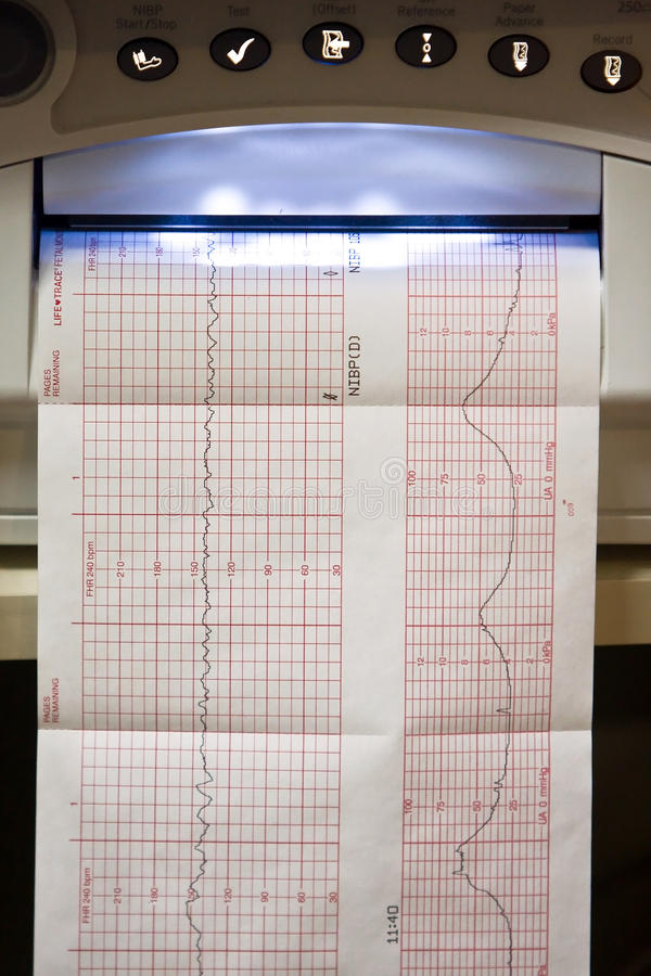 Download EKG graph stock photo. Image of cardiac, illustration - 19781692