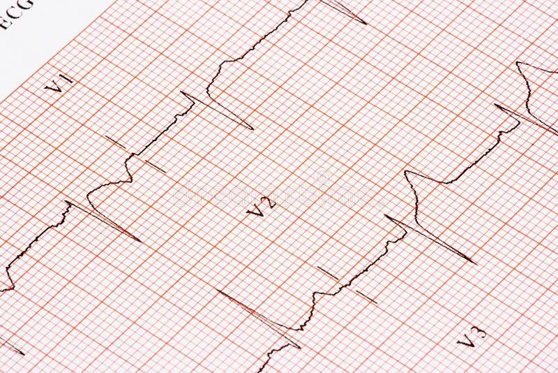 EKG Graph Royalty Free Stock Image