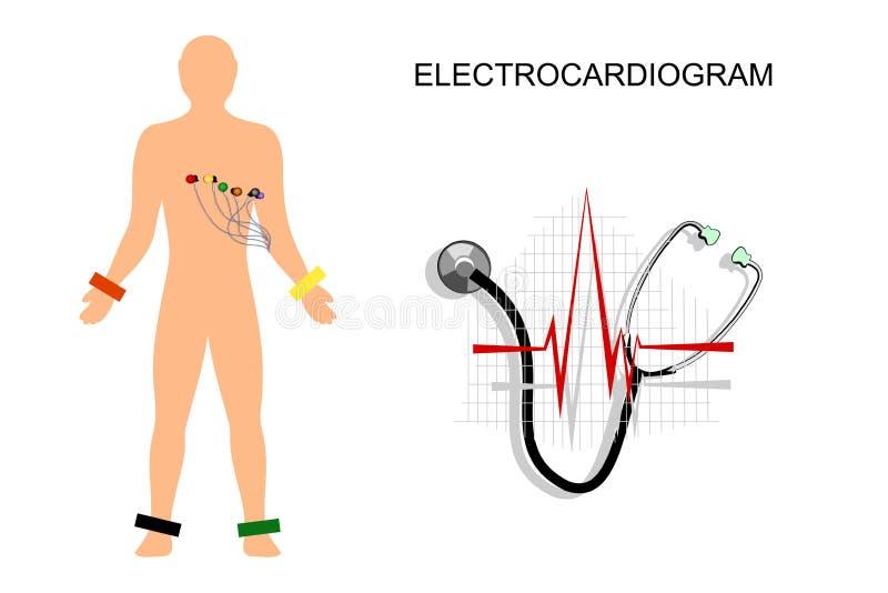 EKG pacjent z elektrodami na klatce piersiowej royalty ilustracja