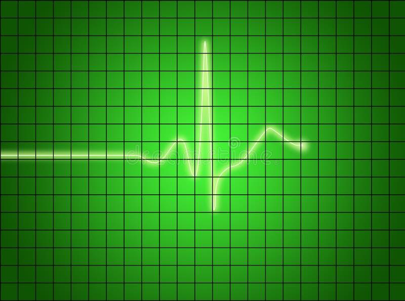 Download Ekg sygnał ilustracji. Obraz złożonej z digitalis, diagnostyk - 1517114
