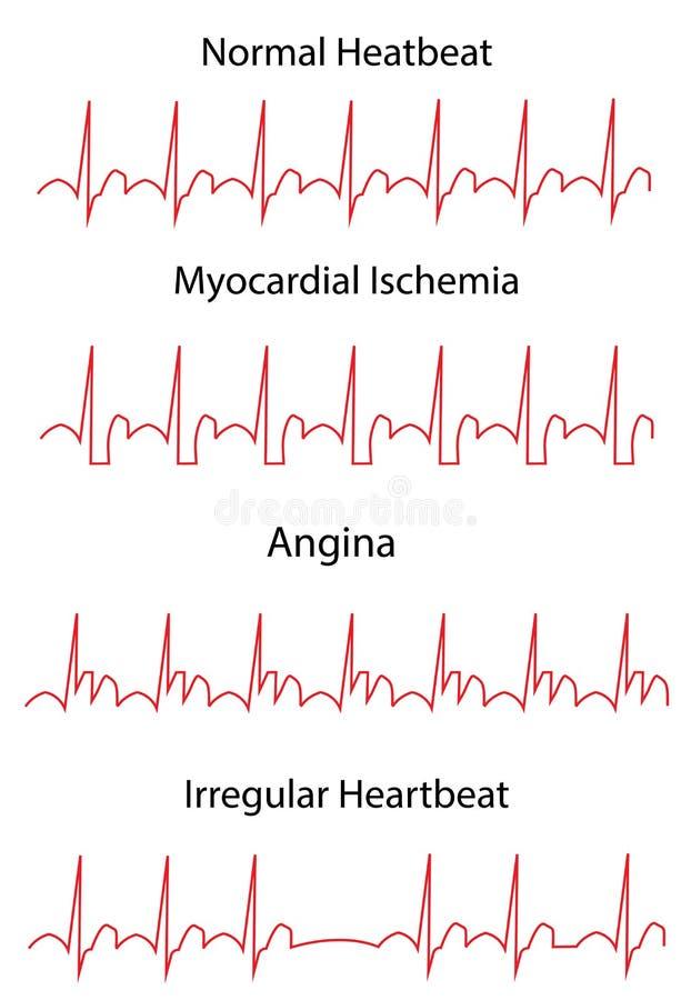 EKG Traces of Normal and Pathologies. ECG Traces of Normal and Pathologies. Medicine and health royalty free illustration