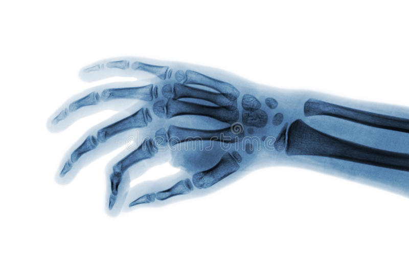 Ekranowa promieniowanie rentgenowskie ręka dziecko Pochylony widok zdjęcie royalty free