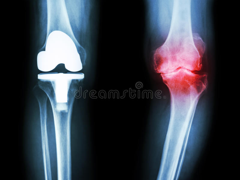 Ekranowy promieniowania rentgenowskiego kolano osteoarthritis kolanowy pacjent i sztuczny złącze zdjęcia stock
