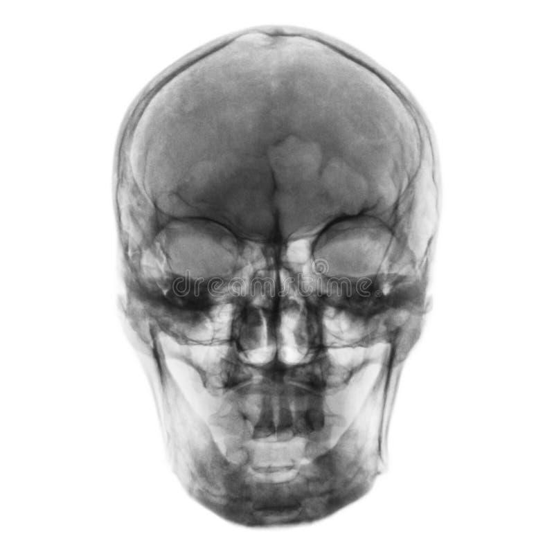 Ekranowy promieniowanie rentgenowskie normalna ludzka czaszka Frontowy widok zdjęcia stock