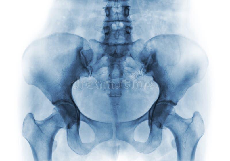 Ekranowy promieniowanie rentgenowskie normalny ludzki pelvis i modni złącza zdjęcia royalty free