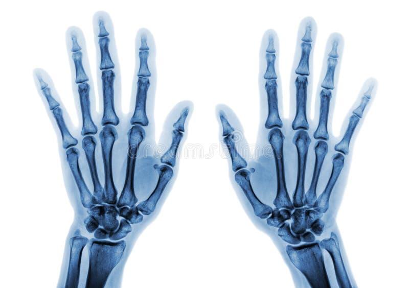 Ekranowy promieniowanie rentgenowskie oba wręcza AP przedstawieniu normalne ludzkie ręki na białym background& x28; & x29; obraz stock