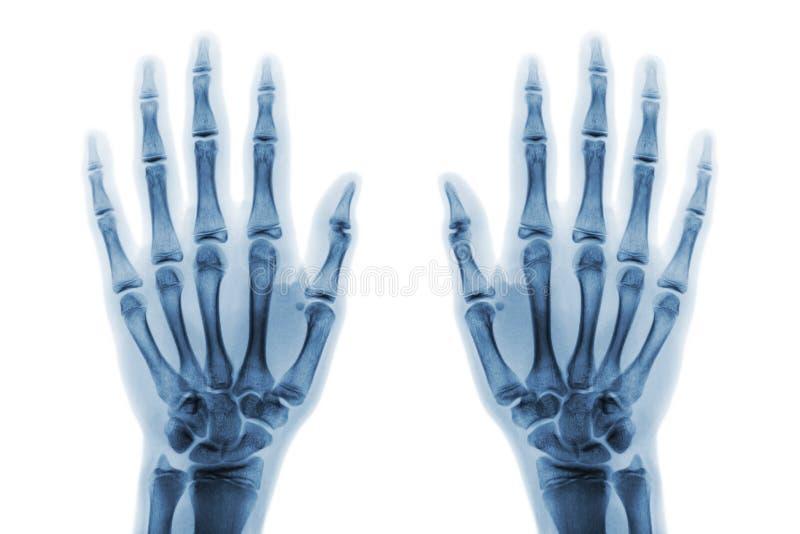 Ekranowy promieniowanie rentgenowskie oba wręcza AP przedstawieniu normalne ludzkie ręki na białym x28 & tle; odosobniony & x29; zdjęcie royalty free