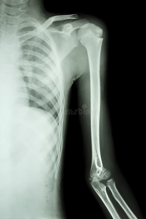 Ekranowy promieniowanie rentgenowskie opuszczać brać na swoje barki fotografia royalty free