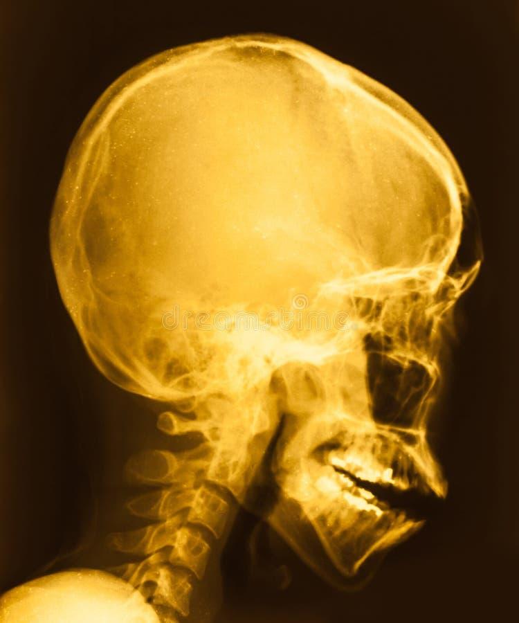 Ekranowy Radiologiczny wizerunek głowa zdjęcie royalty free