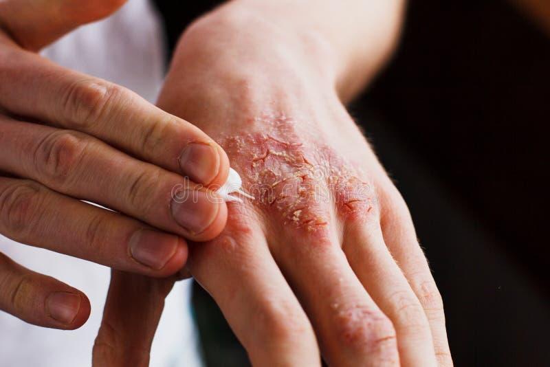 Eksem på händerna Mannen som applicerar salvan, krämer i behandlingen av eksem, psoriasis och annan hud royaltyfria bilder