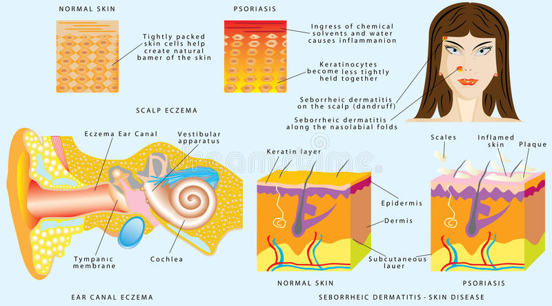 Eksemhud vektor illustrationer