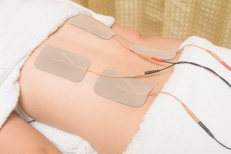 Elétrodos do dispositivo dos dez no músculo traseiro fotografia de stock
