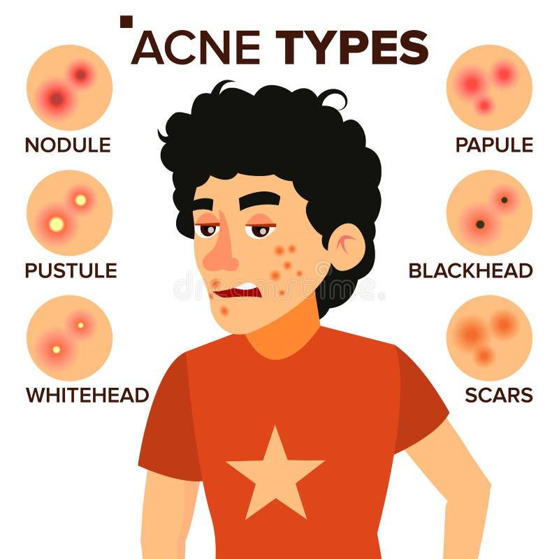 El acné mecanografía vector Muchacho con acné Espinillas, arrugas, piel seca, espinillas Ejemplo plano aislado del personaje de d libre illustration