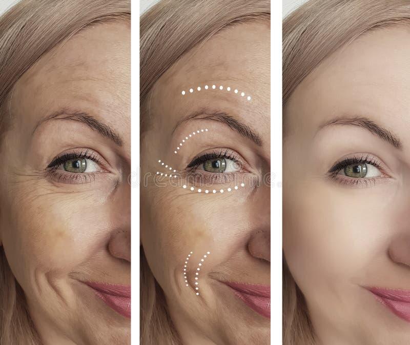 El adulto de la mujer arruga retiro antes y después de tratamientos de la regeneración de la cosmetología del collage imágenes de archivo libres de regalías