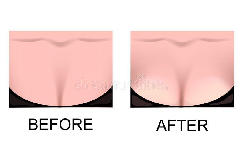 El aumento del pecho Cirugía plástica stock de ilustración