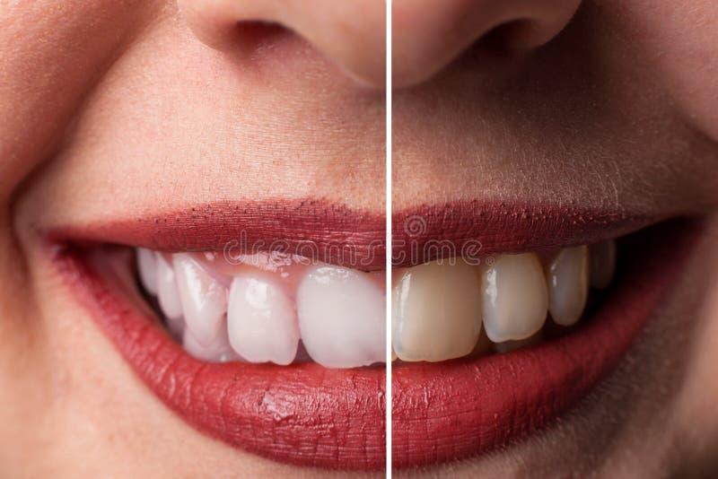 El blanquear del diente fotografía de archivo libre de regalías