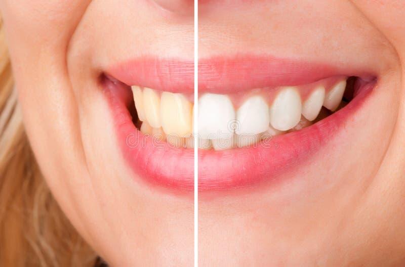 El blanquear dental fotografía de archivo libre de regalías
