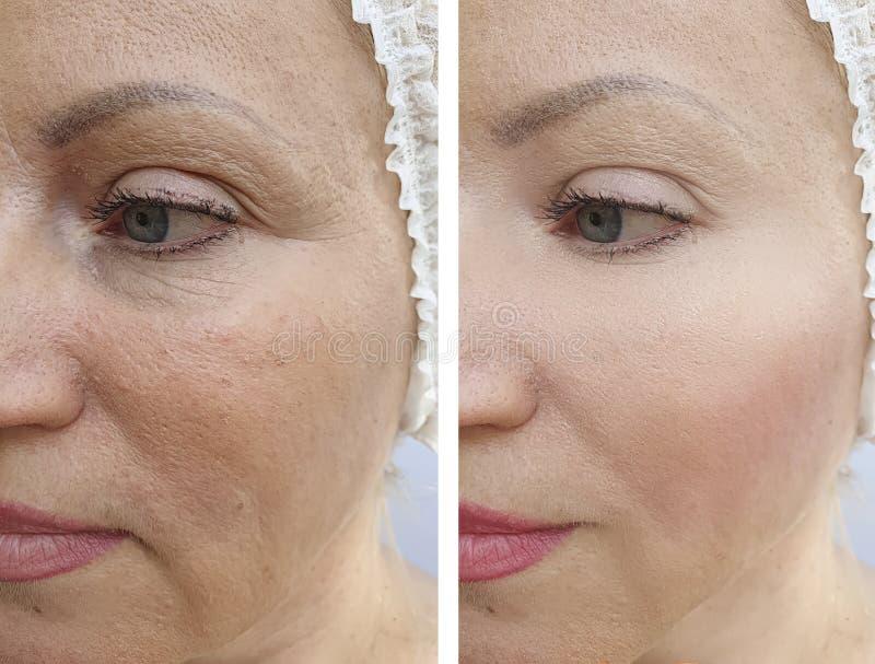 El caucásico de la mujer arruga resultado antes y después de arrugas de la cara del resultswoman de los procedimientos del tratam fotos de archivo libres de regalías