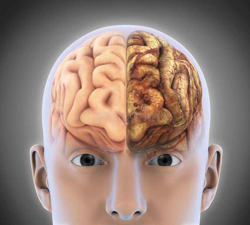 El cerebro sano y el cerebro malsano libre illustration