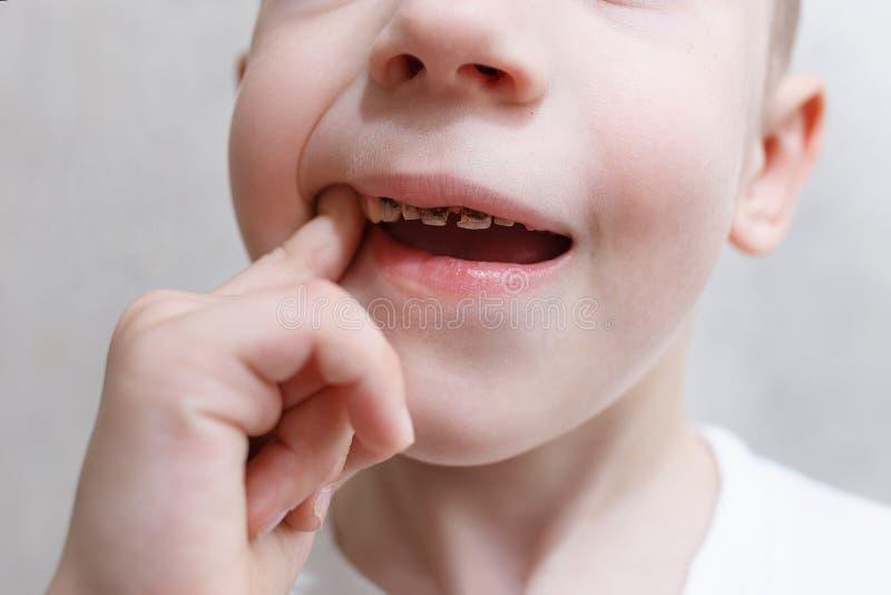 El cierre para arriba tir? de los dientes de un beb? con las caries Atenci?n sanitaria, higiene dental y concepto de la ni?ez Pro imagen de archivo
