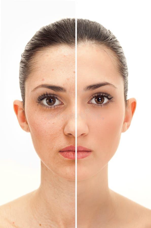 El concepto de la belleza antes y después de retoca foto de archivo libre de regalías