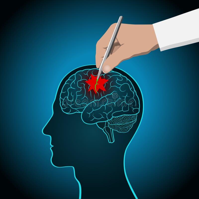 El concepto de recuperación del cerebro, memoria, movimiento, tratamiento del cerebro ilustración del vector
