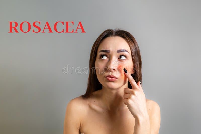 El concepto de rosácea Una morena caucásica señala un dedo en una mejilla roja con inflamación La inscripción Rosacea Copiar imagen de archivo libre de regalías